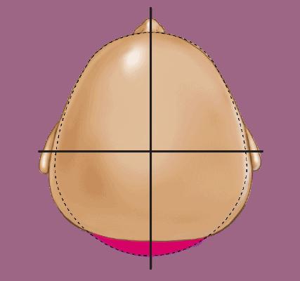 Deformational Brachycephaly Head Shape - Type 2 Moderate