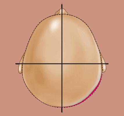 Deformational Plagiocephaly Head Shape - Type 1 Normal