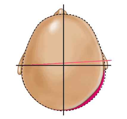 Deformational Plagiocephaly Head Shape - Type 2 Mild