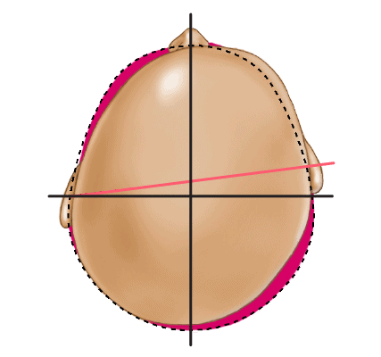 Deformational Plagiocephaly Head Shape - Type 3 Moderate