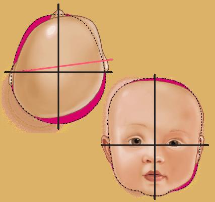 Deformational Plagiocephaly Head Shape - Type 4 Severe