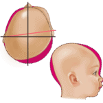 Deformational Plagiocephaly Head Shape - Type 5 Very Severe